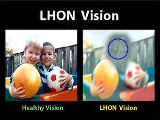 foto comparativa - a primeira simula uma visão saudável que enxerga duas crianças com bolas coloridas, e a segunda a visão de uma pessoa com LHON, enxerga a imagem embaçada