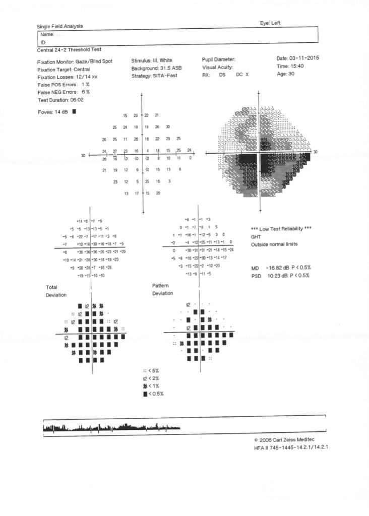 campimetria de uma pessoa vivendo com Neuropatia Ótica Hereditária de Leber- LHON com quatro anos de sintomas.