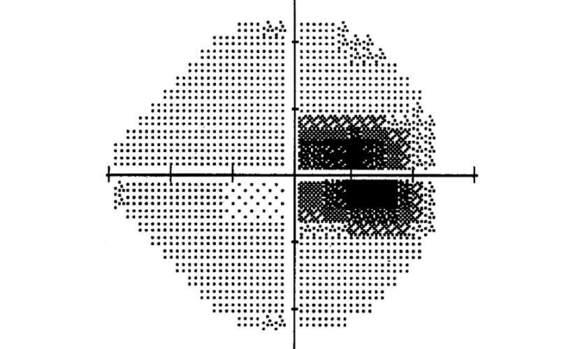 Campo visual de escala cinzenta, 3 meses após o início da perda visual, mostrando escotoma centrocaecal (perda da definição da imagem). Após 3 meses, em geral, a pessoa vivendo com Neuropatia Ótica Hereditária de Leber-LHON pode começar a perder a visão central.